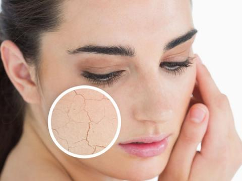 Home remedies for battling dry skin